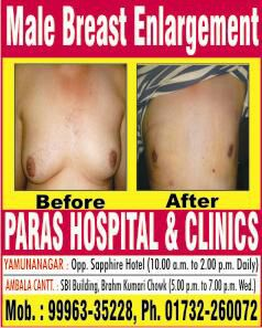 Male Breast Enlargement Treatment