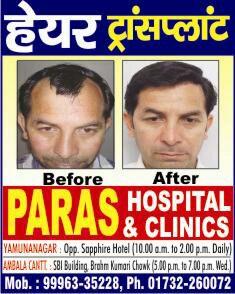 Paras Hospital Hair Transplantation